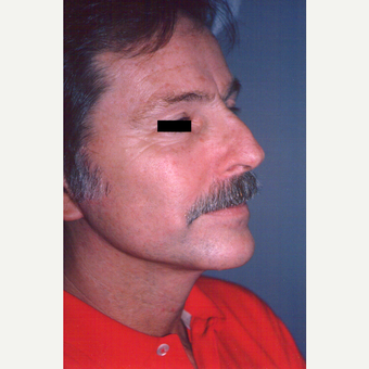 55-64 year old man treated with Facelift after 3539018