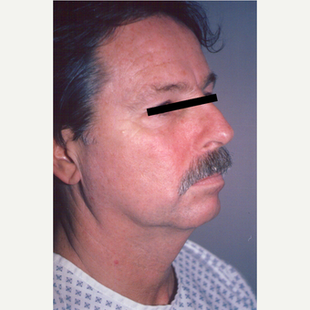 55-64 year old man treated with Facelift before 3539018