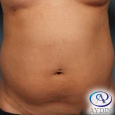 35-44 year old woman treated with Liposuction before 3253534