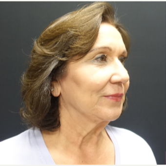 65-74 year old woman treated with Facelift before 3244835