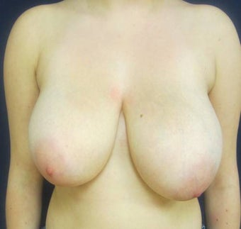 Breast Reduction before 824419