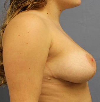 Breast Reduction 824419