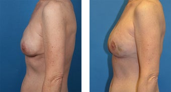 41 Year Old Woman, Cassileth One-Stage Breast Reconstruction after 1039917