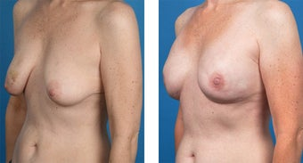 41 Year Old Woman, Cassileth One-Stage Breast Reconstruction 1039917