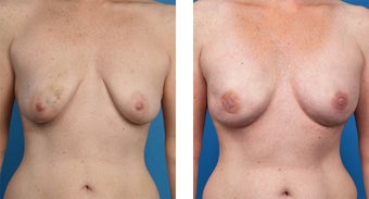41 Year Old Woman, Cassileth One-Stage Breast Reconstruction before 1039917