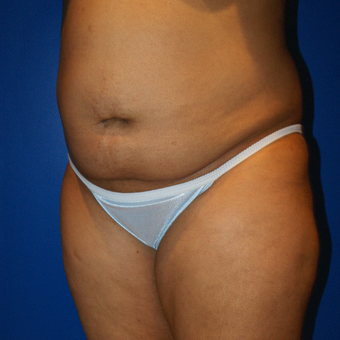 45-54 year old woman treated with Brazilian Butt Lift and liposuction before 3125826