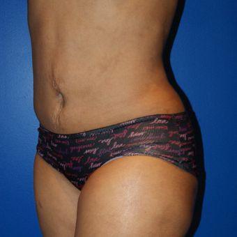 45-54 year old woman treated with Brazilian Butt Lift and liposuction after 3125826