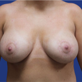 25-34 year old woman treated with Breast Lift with Implants after 3520068