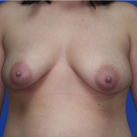25-34 year old woman treated with Breast Lift with Implants before 3520068