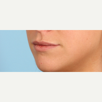 25-34 year old woman treated with Juvederm before 3819247