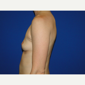 Breast Augmentation with 475 cc Silicone Implants before 3850714