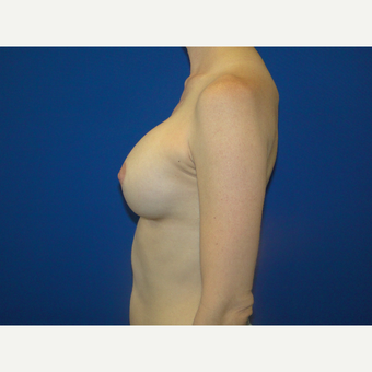 Breast Augmentation with 475 cc Silicone Implants after 3850714