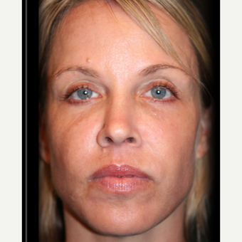45-54 year old woman treated with Sculptra before 3709692