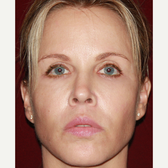 45-54 year old woman treated with Sculptra after 3709692