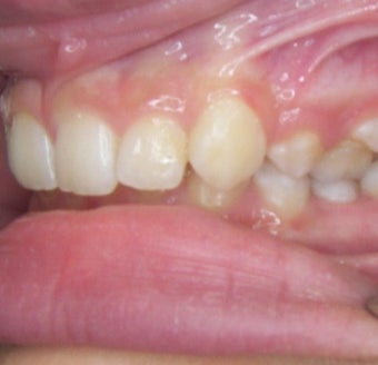 17 or under year old woman treated with Clear Braces before 1567770