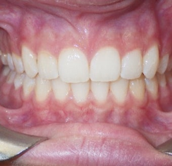 17 or under year old woman treated with Clear Braces 1567770