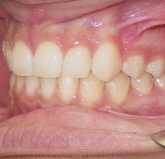 17 or under year old woman treated with Clear Braces after 1567770