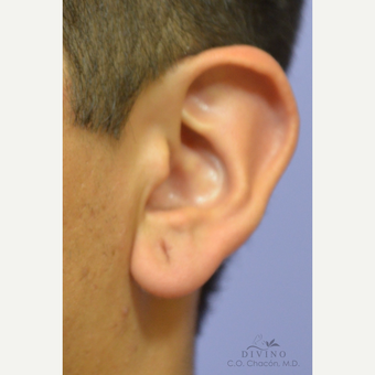 18-24 year old man treated with Ear Lobe Surgery before 3391410