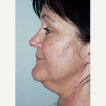 48 year old woman undergoes facelift procedure before 3440052
