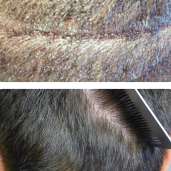 25-34 year old man treated with Hair Transplant before 3222738