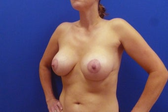 Breast Lift 935822