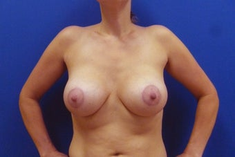 Breast Lift after 935822