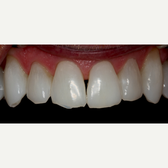45-54 year old man treated with Invisalign before 3129077