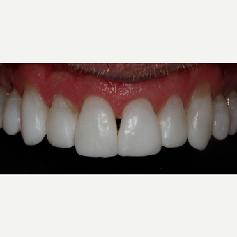 45-54 year old man treated with Invisalign after 3129077