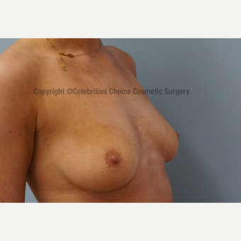 25-34 year old woman treated with Breast Augmentation before 3358517