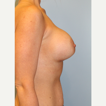 25-34 year old woman treated with Breast Augmentation after 3106675