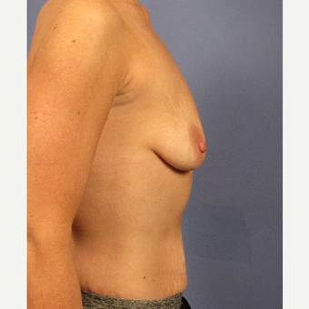 25-34 year old woman treated with Breast Augmentation before 3106675