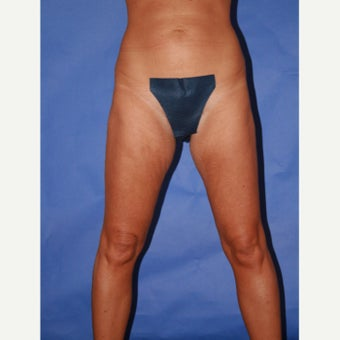 35-44 year old woman treated with Thigh Lift before 2017881