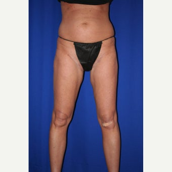35-44 year old woman treated with Thigh Lift after 2017881