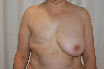 DIEAP flap right breast reconstruction before 399061
