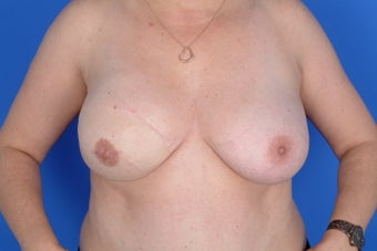 DIEAP flap right breast reconstruction after 399061