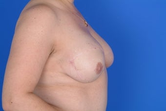 DIEAP flap right breast reconstruction 399061