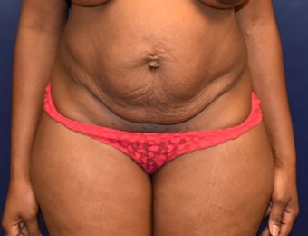 35-44 year old woman treated with Liposuction before 3508657