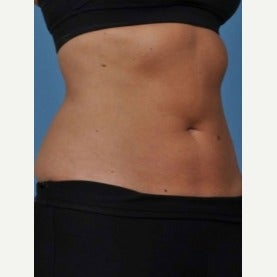 35-44 year old woman treated with CoolSculpting after 2154993