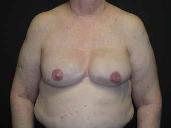 Breast reconstruction - Implants after 912574