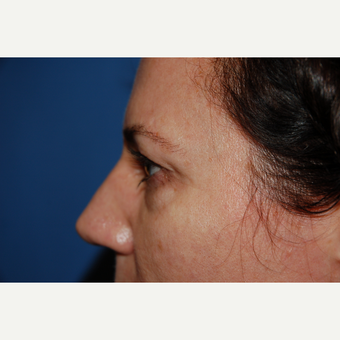 35-44 year old woman treated with Eyelid Surgery before 3782034