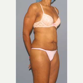 25-34 year old woman treated with Tummy Tuck before 3565720