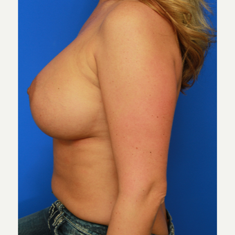 36- year old woman treated with Breast Implant Revision after 3168189