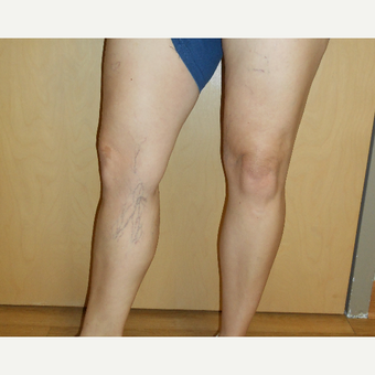 45-54 year old woman treated with Sclerotherapy before 3161493