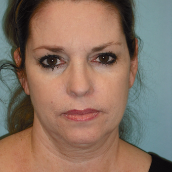 45-54 year old woman treated with Facelift before 3725180