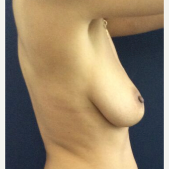 35-44 year old woman treated with Breast Lift before 3841972