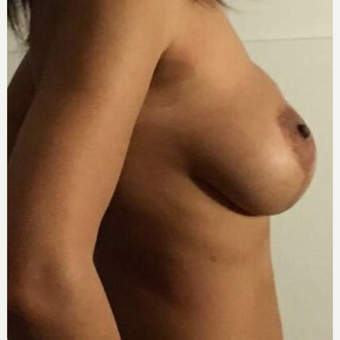 35-44 year old woman treated with Breast Lift after 3841972