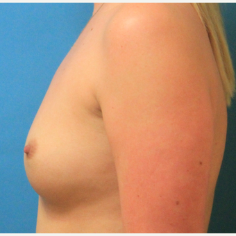 25-34 year old woman treated with Breast Augmentation before 3744065
