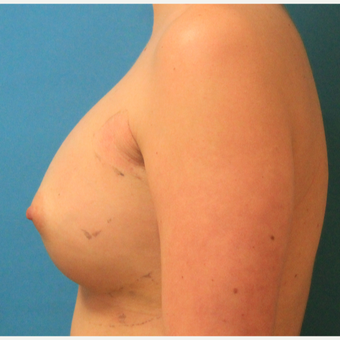 25-34 year old woman treated with Breast Augmentation after 3744065