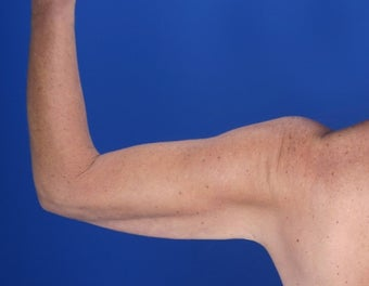 48 Year Old Weight Loss Patient with Arm Laxity