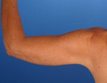 48 Year Old Weight Loss Patient with Arm Laxity after 777579
